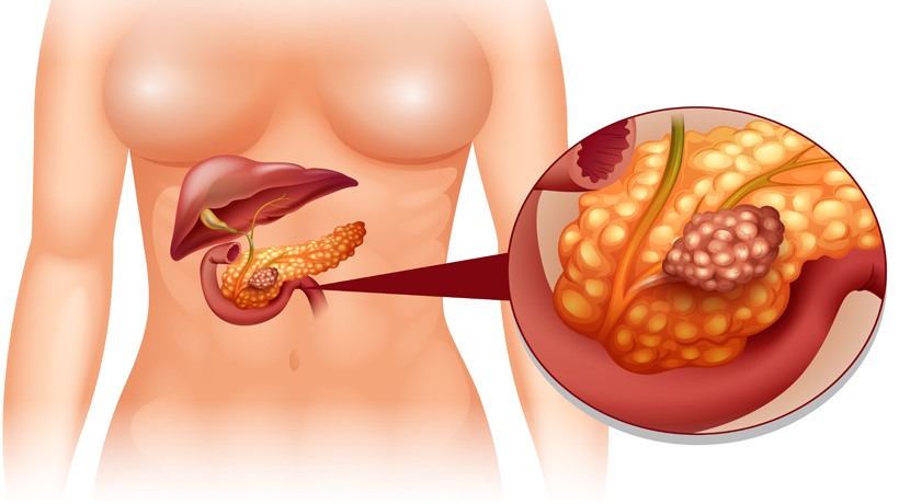 5 Warning Signs That Your Pancreas Is In Danger Womenworking
