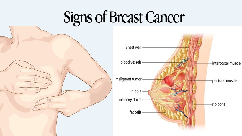 5 Signs Of Breast Cancer Aside From A Lump Womenworking