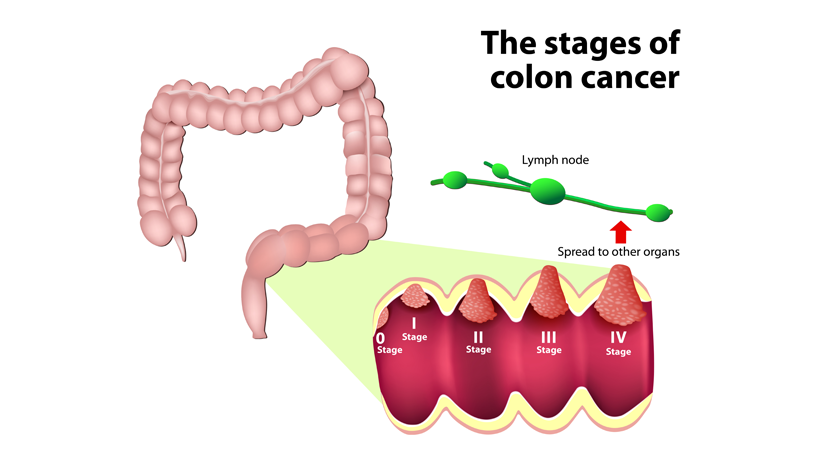 5 Hidden Dangers Of Colon Cancer That Everyone Should Know