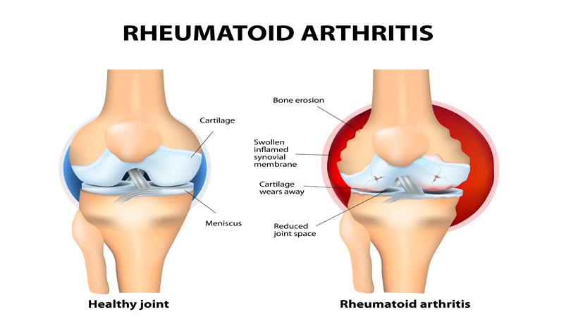 from Marley dating a girl with rheumatoid arthritis