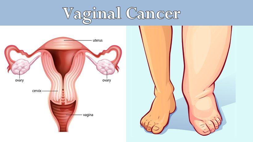 Test for vaginal cancer