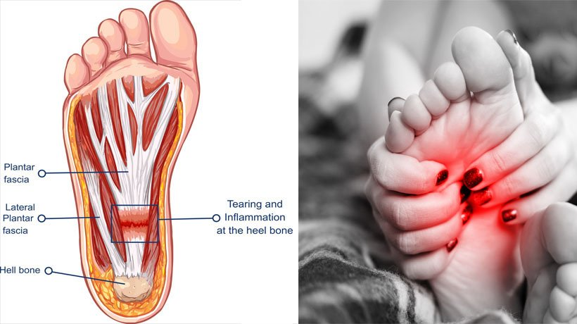 7 Types of Foot Pain That Should Never Be Ignored - WomenWorking