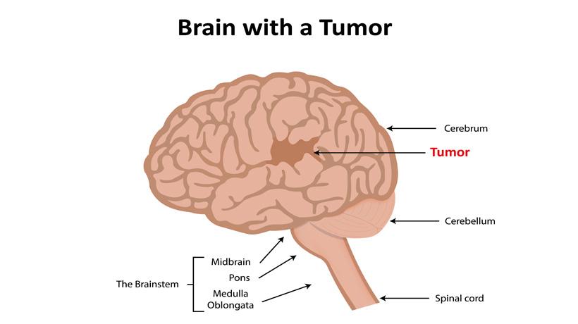 brain tumour causes