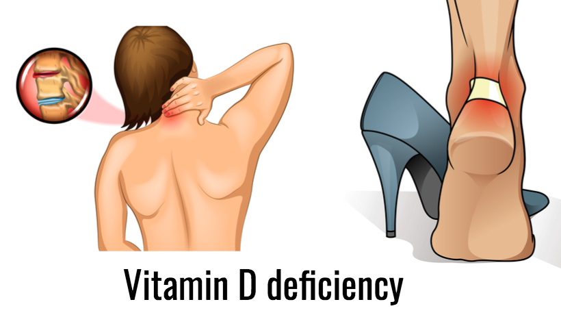 4 Illnesses That May be Linked to Vitamin D Deficiency - WomenWorking