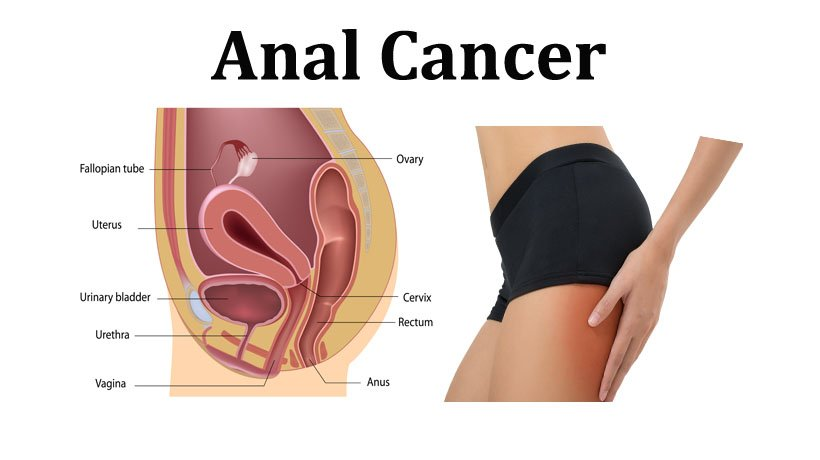 Your idea is anal cancer serious