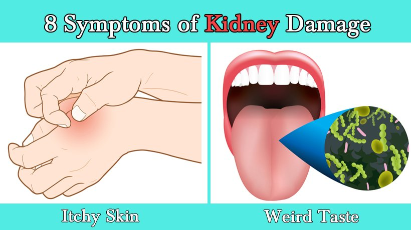 8 Symptoms Of Kidney Damage Womenworking