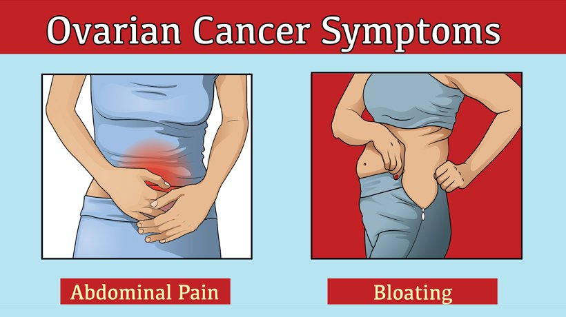 5 Symptoms Of Ovarian Cancer Womenworking