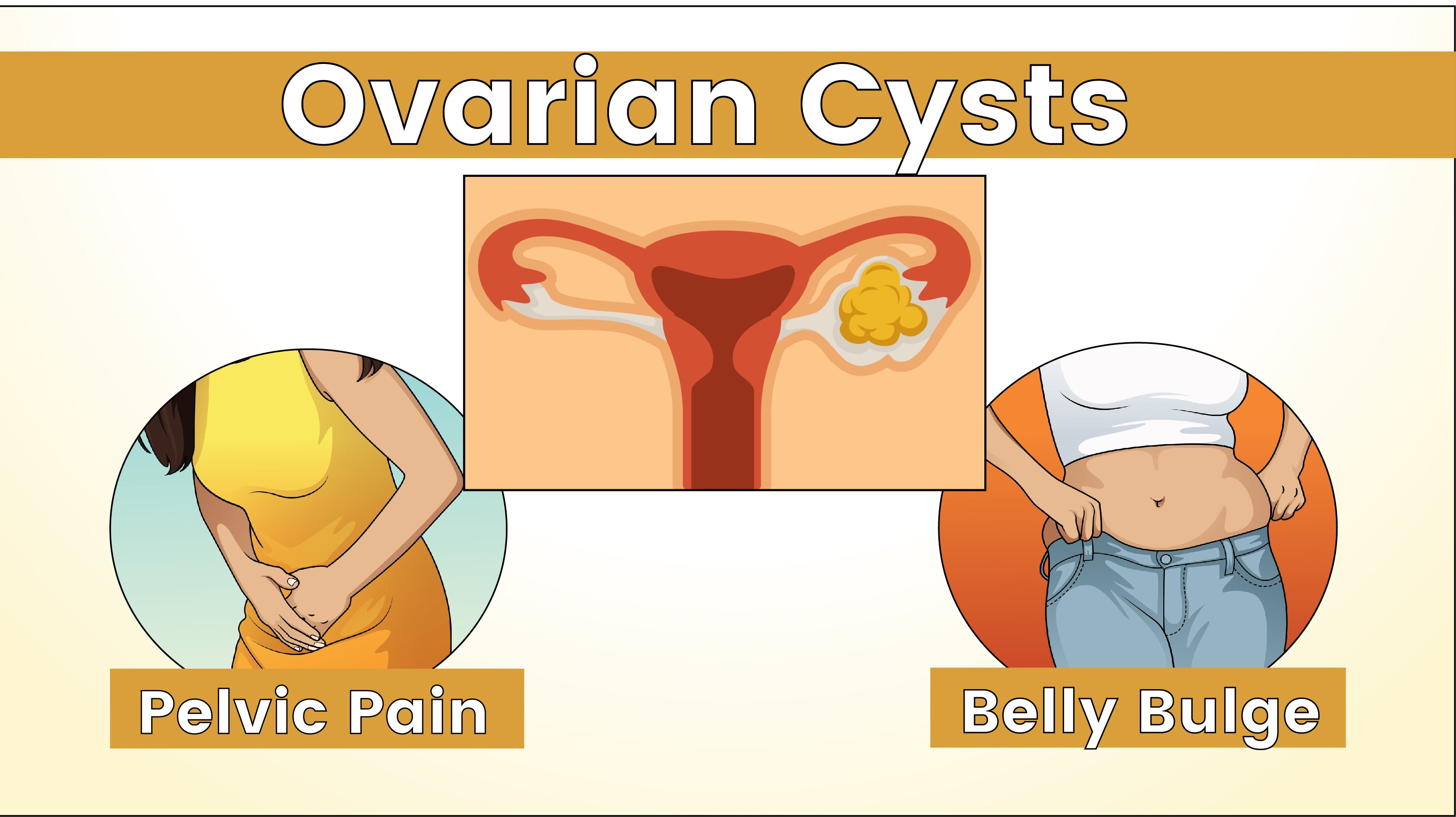 5 Warning Signs You Have An Ovarian Cyst That Could Become Dangerous Womenworking