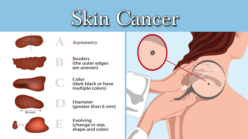 3 Types Of Skin Cancer Women Need To Know About Womenworking
