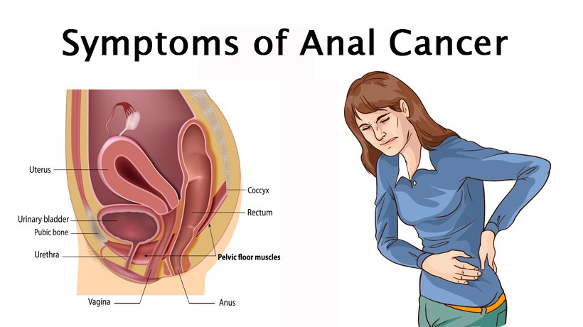 Opinion obvious. itchy anus cancer for the