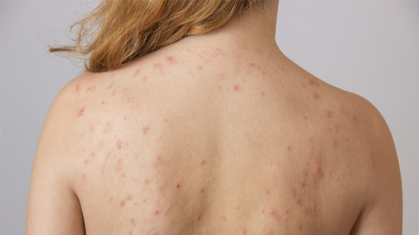 5 Simple Ways to Get Rid of Acne on the Back - WomenWorking